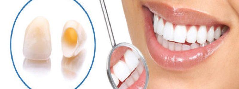 آیا روکش دندان درد دارد