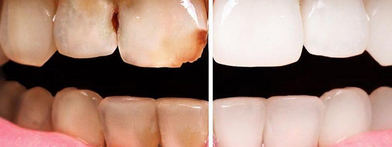 جلوگیری ریزش مینای دندان