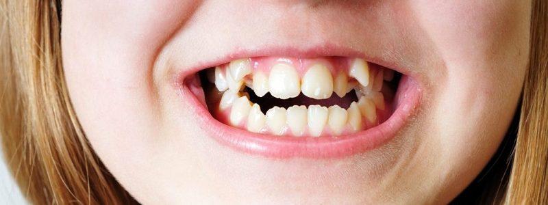 مال اکلوژن دندان ها | علل و علائم