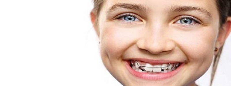 مزیت های درمان ارتودنسی در دوران کودکی